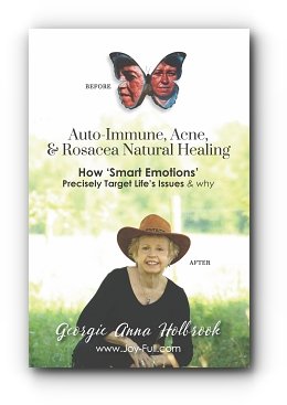 Auto-Immune, Acne, & Rosacea Natural Healing, How 'Smart Emotions' Precisely Target Life's Issues & Why by Georgie Holbrook